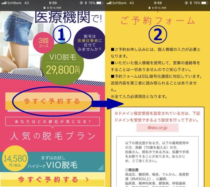 湘南美容クリニックのカウンセリング予約方法