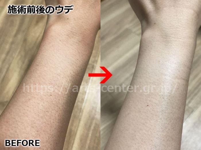 クレアクリニック(足・腕脱毛3回目)の写真と評価を突撃インタビュー