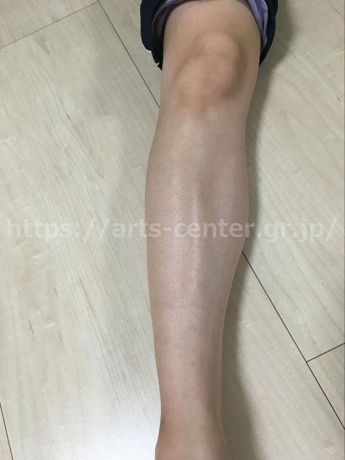 脱毛ラボ 施術後のひざ下