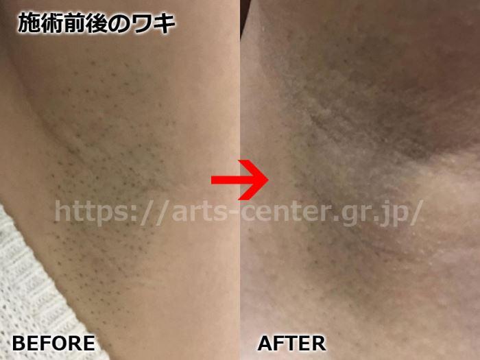 脱毛ラボ全身脱毛の効果 ワキ脱毛2回目の脱毛前後の写真