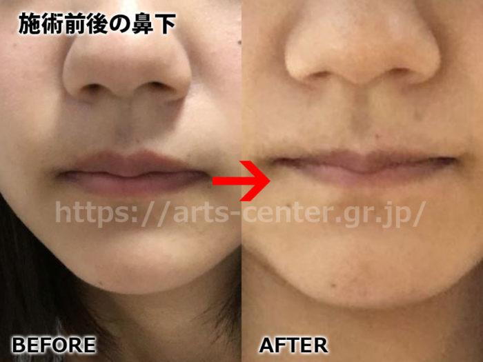 銀座カラー9回目施術前後の鼻下