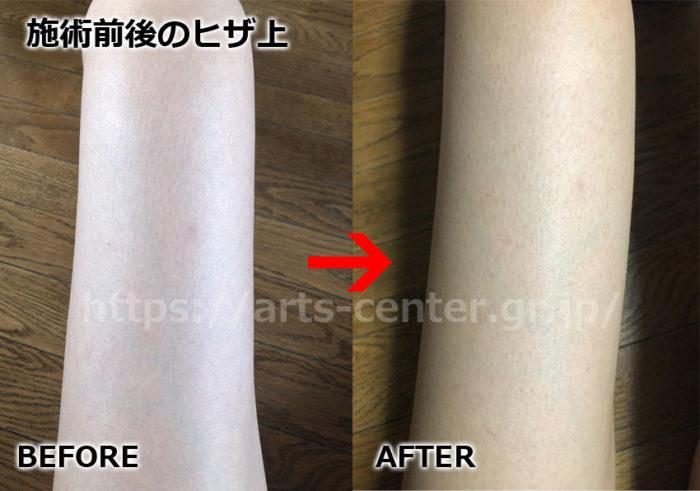 キレイモ全身脱毛の効果 ひざ上脱毛11回目の脱毛前後の写真