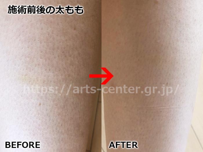 湘南美容外科の足脱毛 脱毛前後の写真