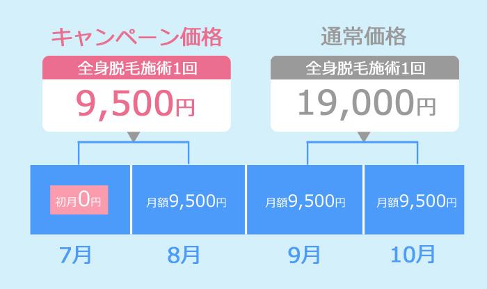 キレイモ初月0円キャンペーンを解説