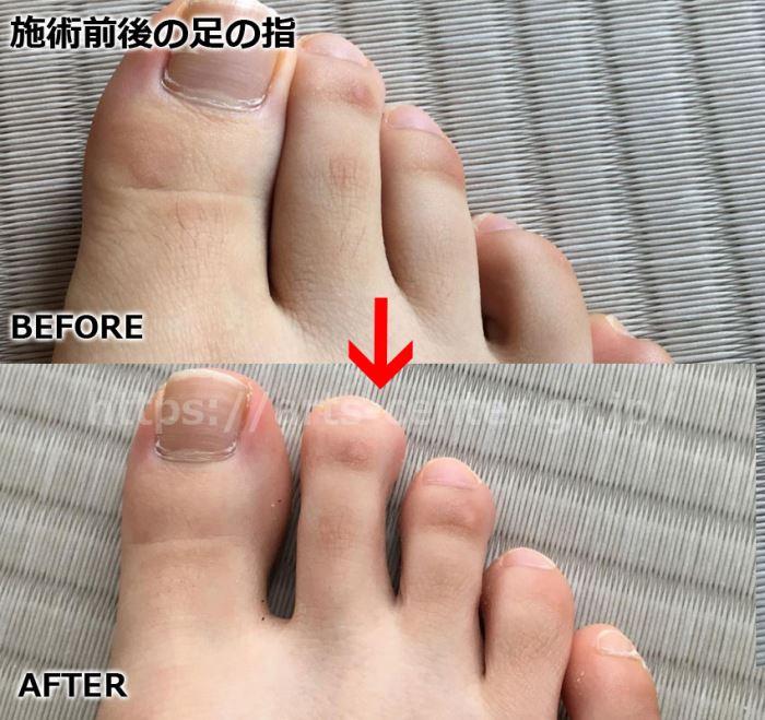 キレイモ 全身脱毛4回目前後 足の指の写真