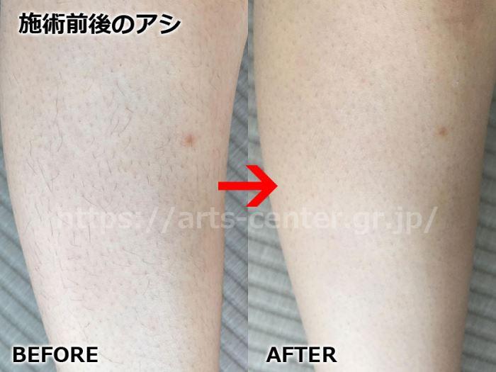 キレイモ全身脱毛の効果 足脱毛4回目の脱毛前後の写真