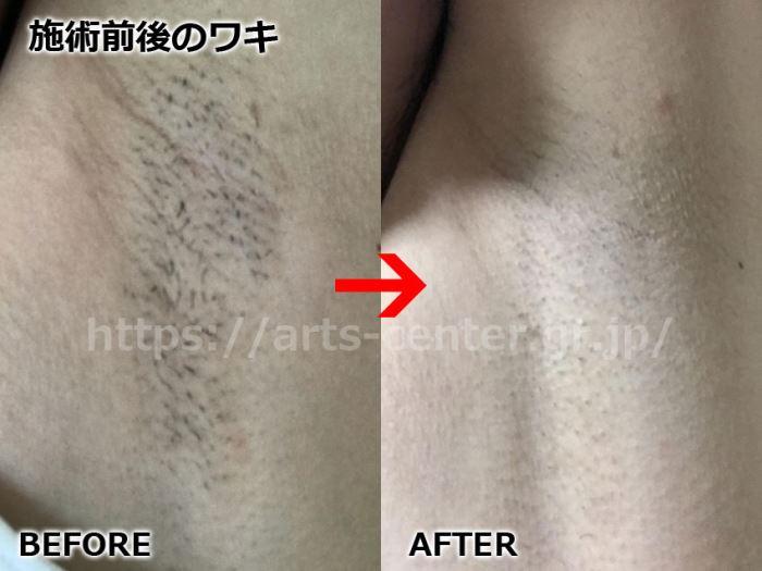 キレイモ全身脱毛の効果 ワキ脱毛6回目の脱毛前後の写真