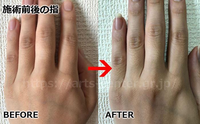 恋肌全身脱毛の効果 手の指脱毛2回目の脱毛前後の写真