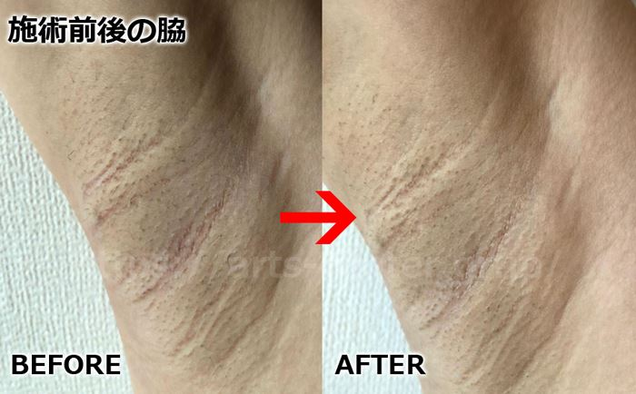 恋肌全身脱毛の効果 ワキ脱毛2回目の脱毛前後の写真
