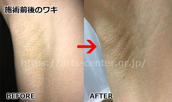 恋肌全身脱毛の効果 ワキ脱毛15回目の脱毛前後の写真