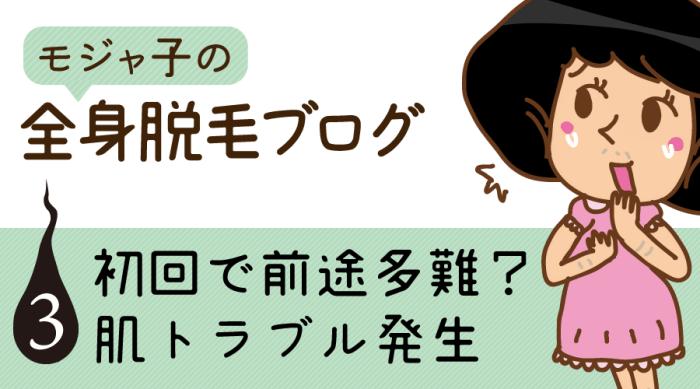 モジャ子の全身脱毛ブログ3-ストラッシュの全身脱毛1回目