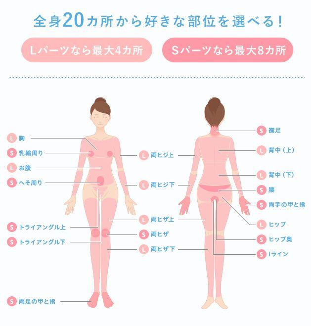 ミュゼ50円均一キャンペーンで脱毛できる部位