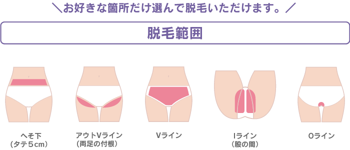 VIO専門脱毛サロンプリート パーツ料金
