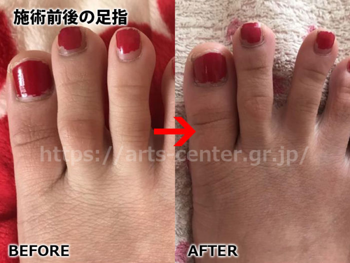 リンリン脱毛前後の足指