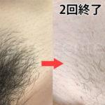 【画像あり!】湘南美容クリニックのVIO脱毛体験談