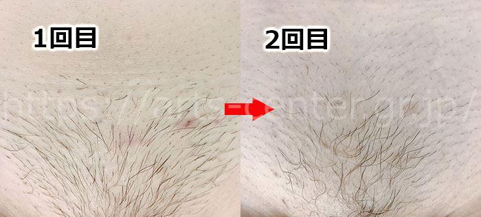 湘南美容のVIO脱毛3回目の体験談