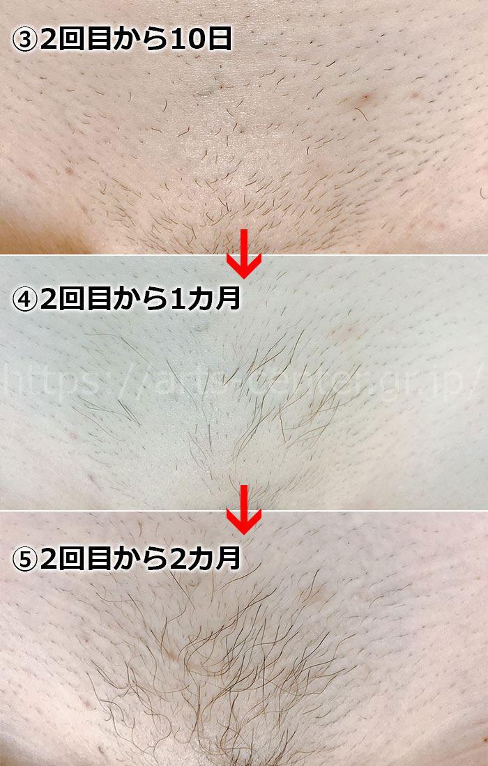 湘南美容外科VIO脱毛2回目の効果