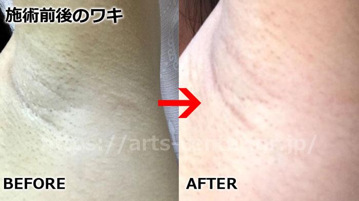 湘南美容外科(ワキ・お腹脱毛2回目)の写真
