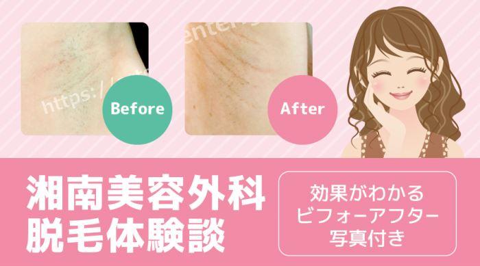 【2018年8月更新】湘南美容外科の体験談・レビュー・口コミまとめ