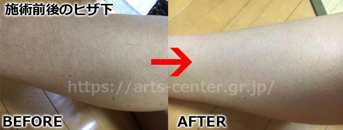 ストラッシュ全身脱毛の効果 ヒザ下4回目の脱毛前後の写真