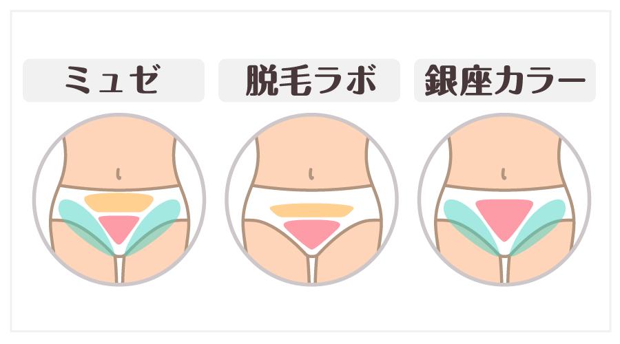 Vラインの分け方(ミュゼプラチナム・脱毛ラボ・銀座カラー)