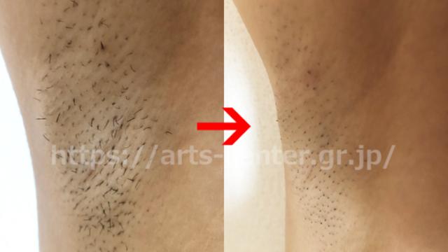 湘南美容外科の脇脱毛 脱毛前後の写真