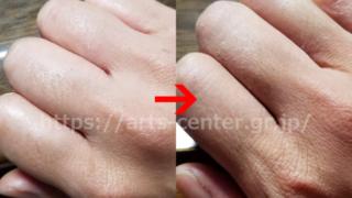 脱毛サロンリンリン 脱毛前後の手の指の写真